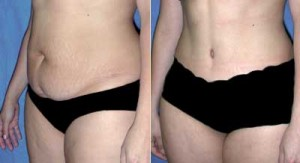 Tummy Tuck before and after Miami by Soluna MD