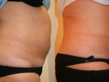 Lipo and Body Sculpting Results