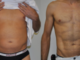 Liposuction for men results