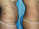 Total Body Sculpting Results Miami