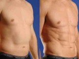 Stomach Liposuction results by Soluna MD