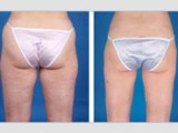 miami liposuction results