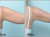 arm liposuction before after