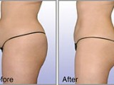 buttock liposuction results